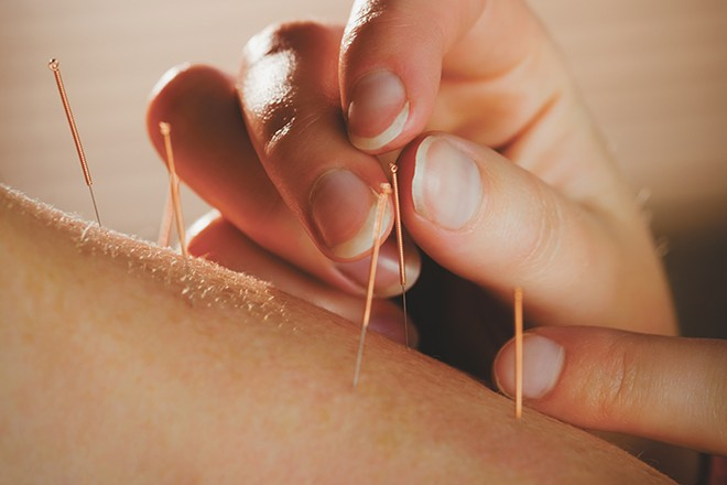 Acupuncture offers a whole body approach to treat a wide variety of troubles – and can cut down on the use of pain medicine.  https://www.inlander.com/spokane/can-acupuncture-help-prevent-opioid-overuse-and-addiction/Content?oid=18393664_0