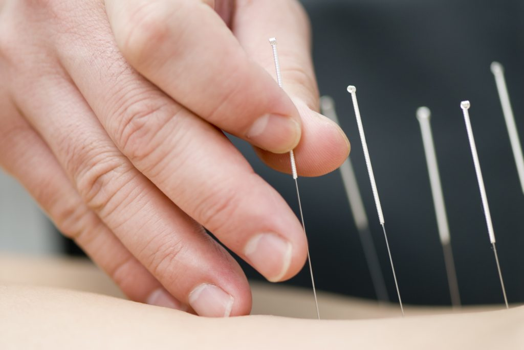 New FDA guidelines recommend doctors get information on acupuncture to help with pain management._0