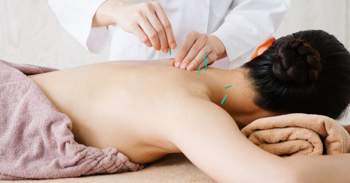 Acupuncture can benefit your brain!_0