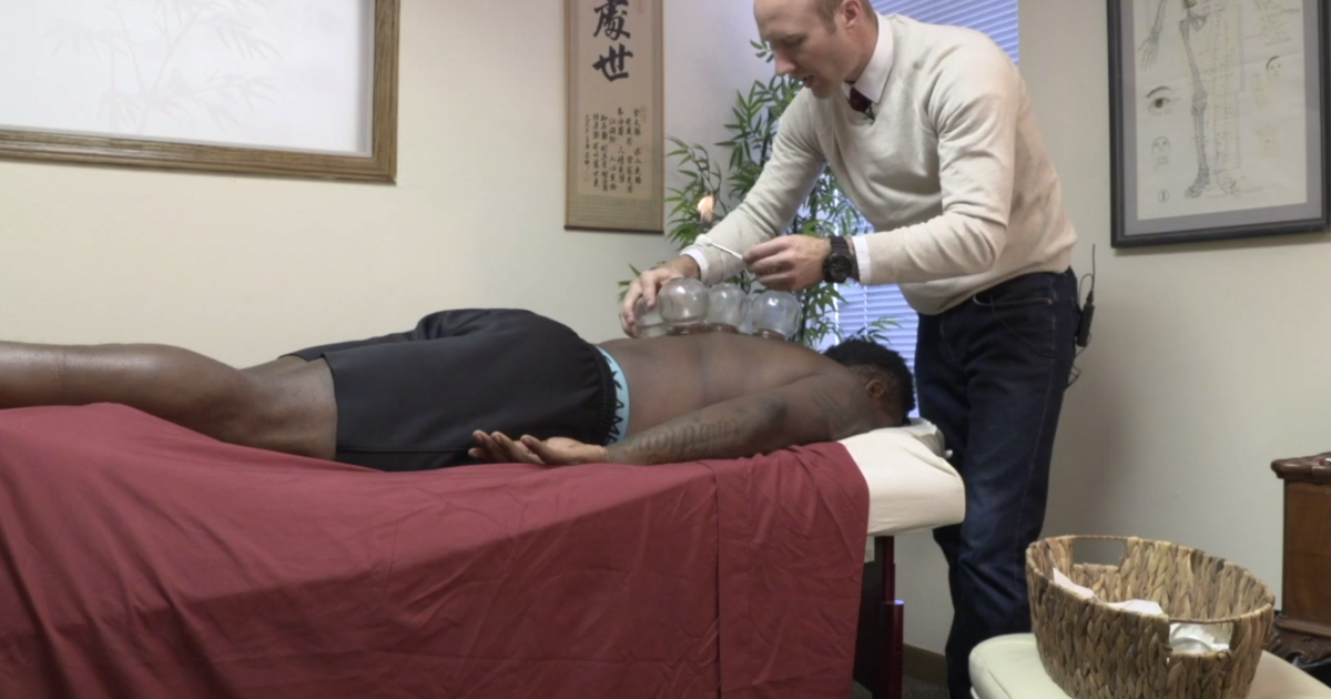 Acupuncture even works for football players!_0